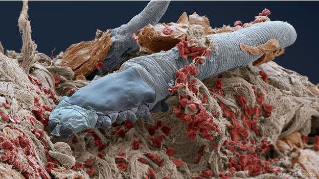 Experimento: Buscando «Demodex sp» con el microscopio